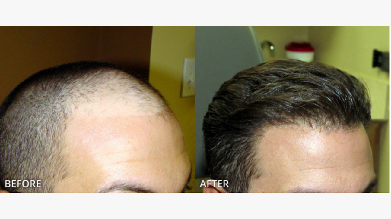 Long-term FUE hair transplant results at Hair Sure Clinic, One of the best Hair Restoration centres in Hyderabad