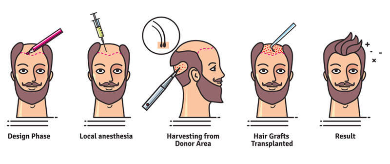 Consult Dr ShashiKanth for best FUE and FUT hair transplantation techniques, One of the best Hair replantation surgery specialists in Hyderabad