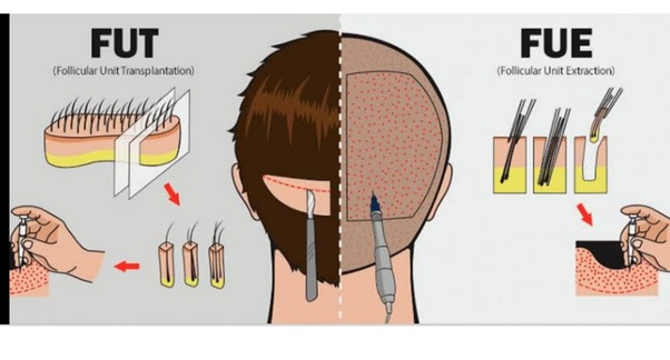 Consult Dr Ravichandar Rao for Scarless Hair transplantation at hair Sure clinic, One of the best Hair replantation surgery doctors in Hyderabad