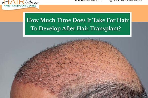 Consult Dr Ravi Chandar Rao to know the hair transplant hair growth timeline, One of the best Hair Restoration specialists in Hyderabad