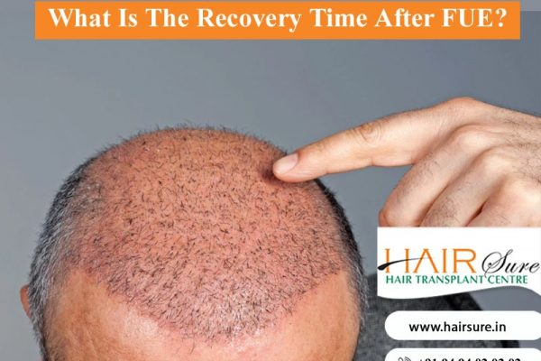 Contact Dr Ravi Chandar to know Hair Transplant Recovery Time, One of the Best Hair Transplantation doctors in Hyderabad