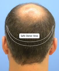 The best way to choose donor area for Hair Transplant at Hair Sure Clinic, One of the best Hair Transplant Centres in Hyderabad