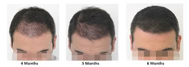 Know the Hair transplant growth stages week by week and month by month at Hair Sure Clinic, One of the best Hair Transplant Surgery Clinics in Hyderabad