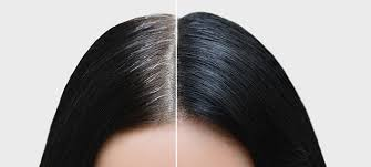 Know the factors that determine hair density after transplant surgery by Dr Ravi Chander Rao, One of the best Hair Restoration Surgery Specialists in Hyderabad