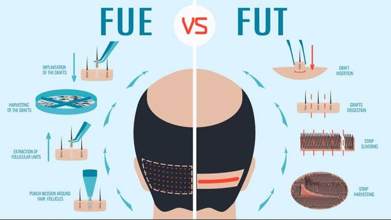 Choose the best one from FUE and FUE hair transplant at Hair Sure, One of the best Hair Restoration Centres in Hyderabad