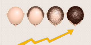 Look at hair transplant growth rate after two weeks at Hair Sure Clinic, One of the best Hair Restoration Centres in Hyderabad