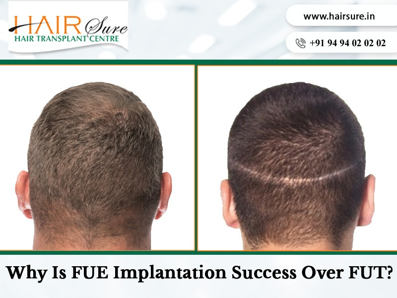 Make an Appointment to know the best Hair transplantation for you at Hair Sure, a hair replantation hospital near me