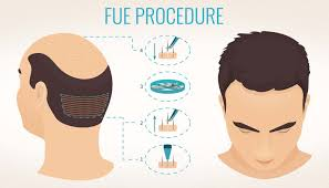 Best FUE Hair Replantation surgery doctor in Hyderabad, hair transplant near me