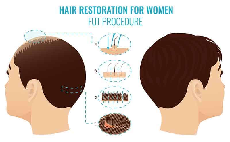 Best women hair restoration in Hyderabad, hair loss doctor near Habsigud