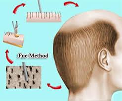 Top FUE hair transplant surgeon in Hyderabad, Hair restoration center near me