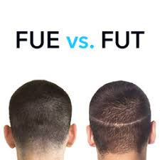 Best think to consult Dr. Sridhar Reddy to select the best Hair transplant option in FUE and FUT, hair restoration center near me