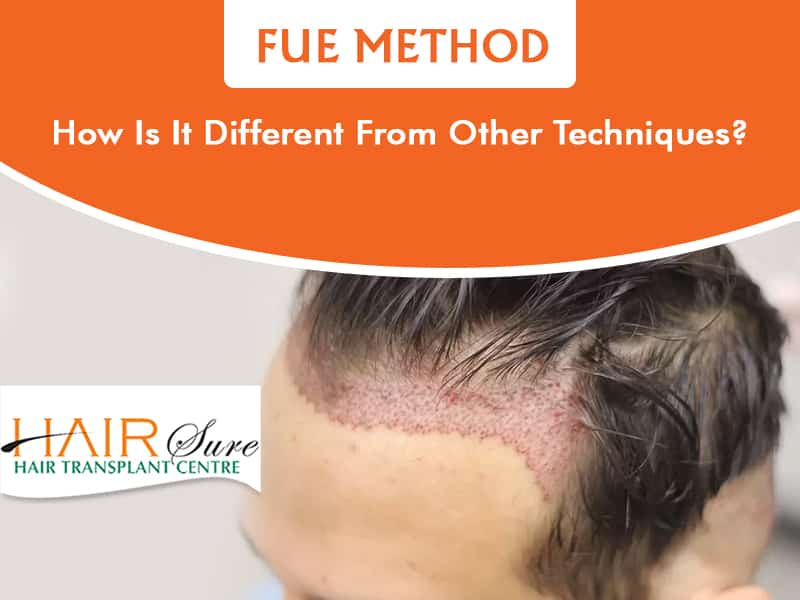Best FUE method for Hair transplantation in Hyderabad, thinning Hair specialist near me