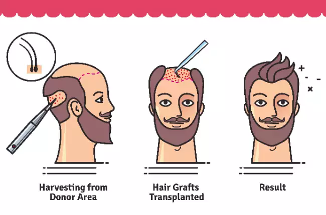 Make a call to know hair transplant surgery procedure cost in Hyderabad, best hair replantation surgeons near me