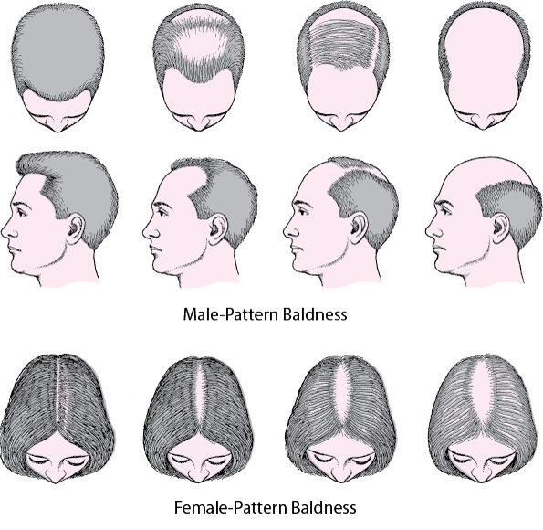 Male and Female pattern baldness treatment in Hyderabad, Hair loss specialist near Habsigud