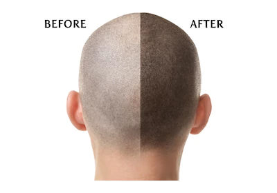100 percent hair transplant results at Hair Sure, One of the best Hair Restoration centers in Hyderabad