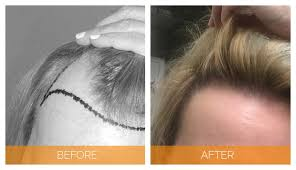 Contact to Hair sure to know best women's hair replacement options, Hair loss treatment doctor near Habsiguda
