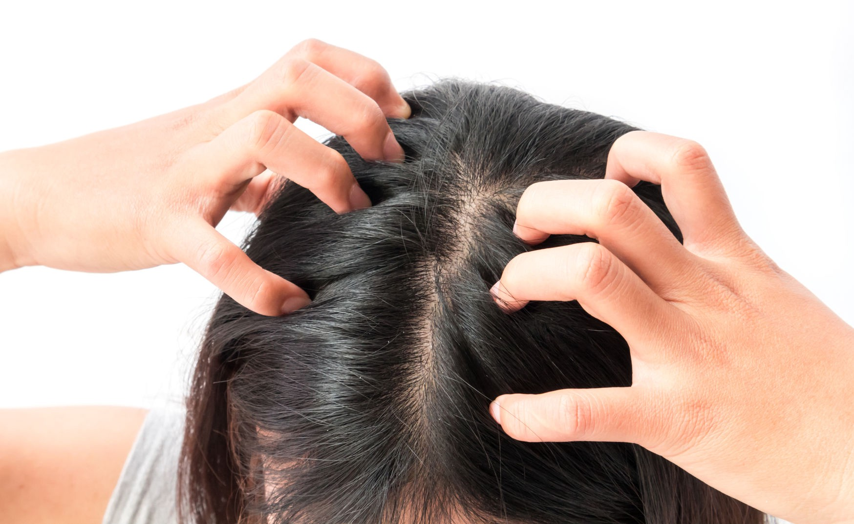 The best time for a hair transplant is winter at Hair sure, a hair restoration hospital near me