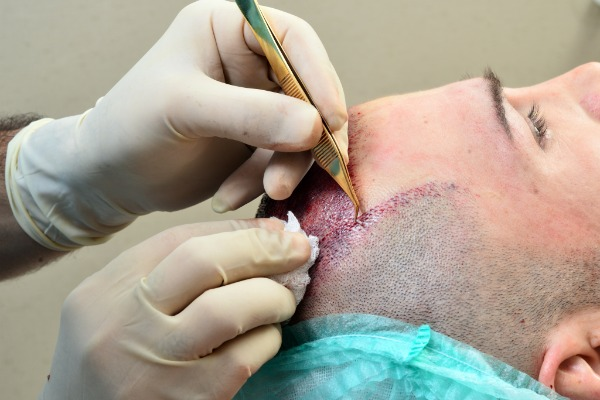 Know the best things to avoid after a Hair Transplant procedure at Hair Sure, One of the best Hair Replantation centers in Hyderabad