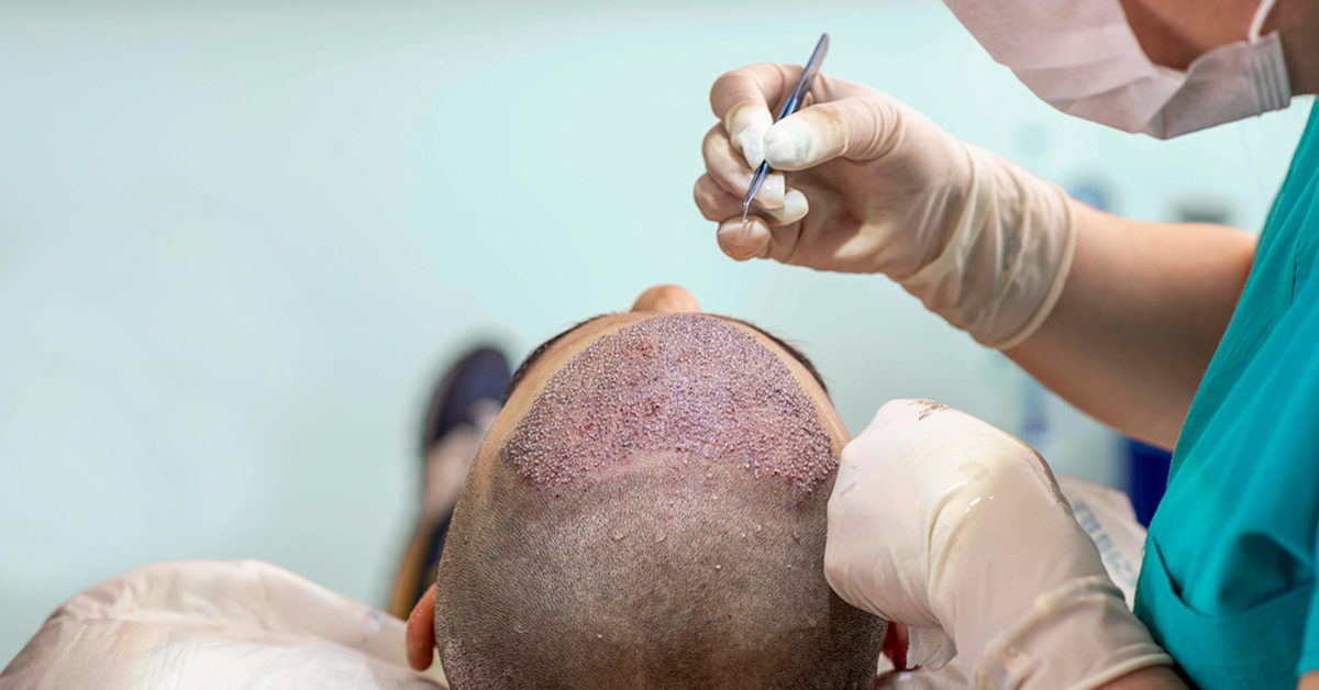 Best hair transplantation techniques in Hyderabad, hair reconstruction doctor near me