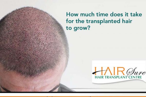 How Much Time Does It Take For The Transplanted Hair To Grow?