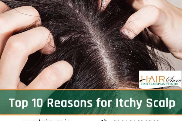 Top 10 Reasons for Itchy Scalp