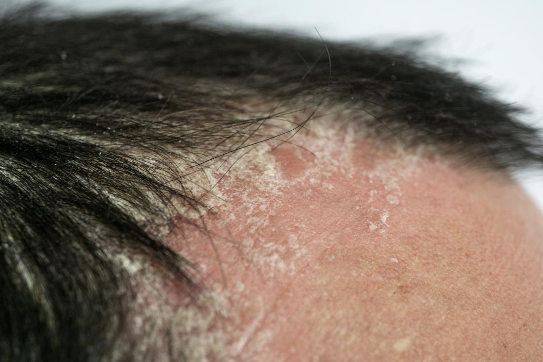 Consult hair expert to know the skin cancer on the scalp and its treatment, hair loss treatment for men near Ramanthpur