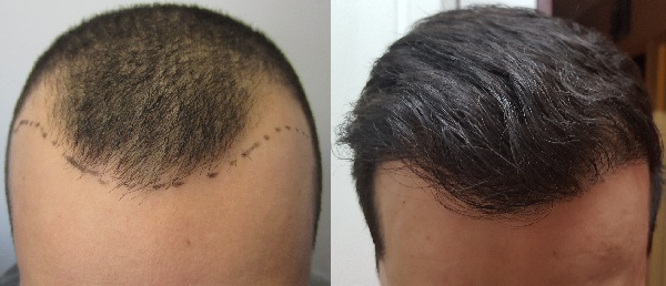 Make an appointment to know complete guide about Hair Transplantation, hair loss treatment hospital near Nacharam