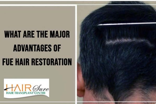 What Are The Major Advantages Of FUE Hair Restoration