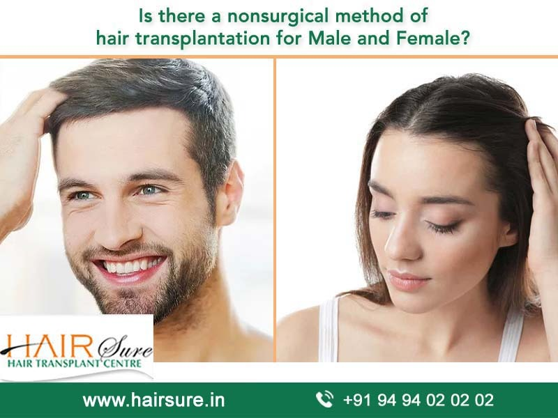 Best Non-surgical hair restoration in Hyderabad, hair and beard transplant near Amberpet