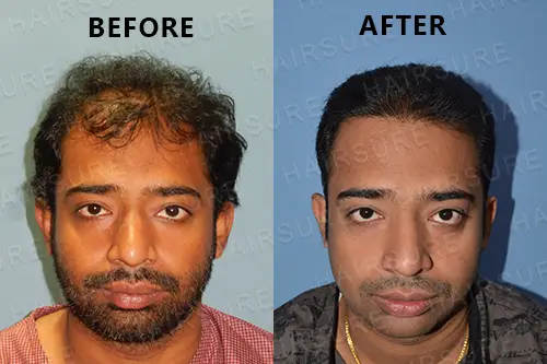 Consult Hair Sure to know before and after hair restoration results, fue hairline surgery near Boduppal