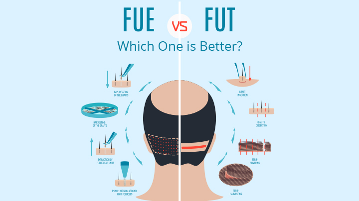 Consult Hair Sure for FUE Vs FUT hair transplant to know which one is better, One of the best Hair replantation clinins in Hyderabad