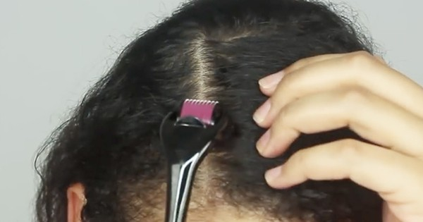 Consult Hair sure to know about Microneedles or Mesorollers for hair care, best hair care center near Nacharam