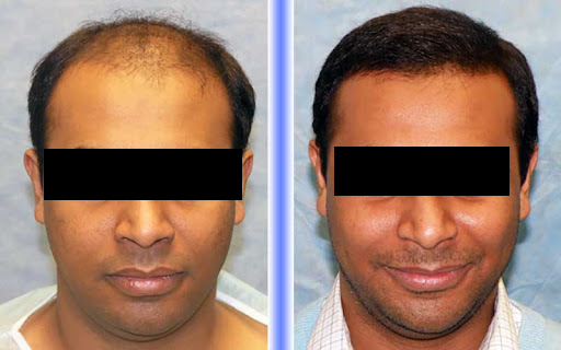 Come Hair sure to know fue hair transplant cost in Hyderabad, fue hair restoration near Uppal