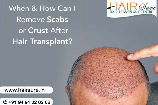 When & how can I remove scabs or crust after a hair transplant?