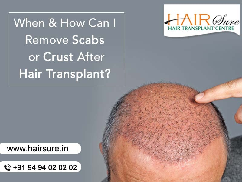 Consult Hair Transplant surgeon Hyderabad for Remove scabs or crust after a hair transplant