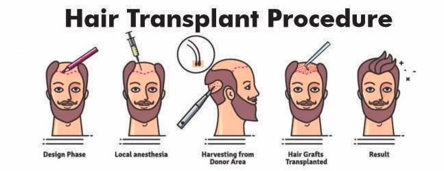 Get the best method for hair transplant in Hyderabad, hair care specialist in Hyderabad