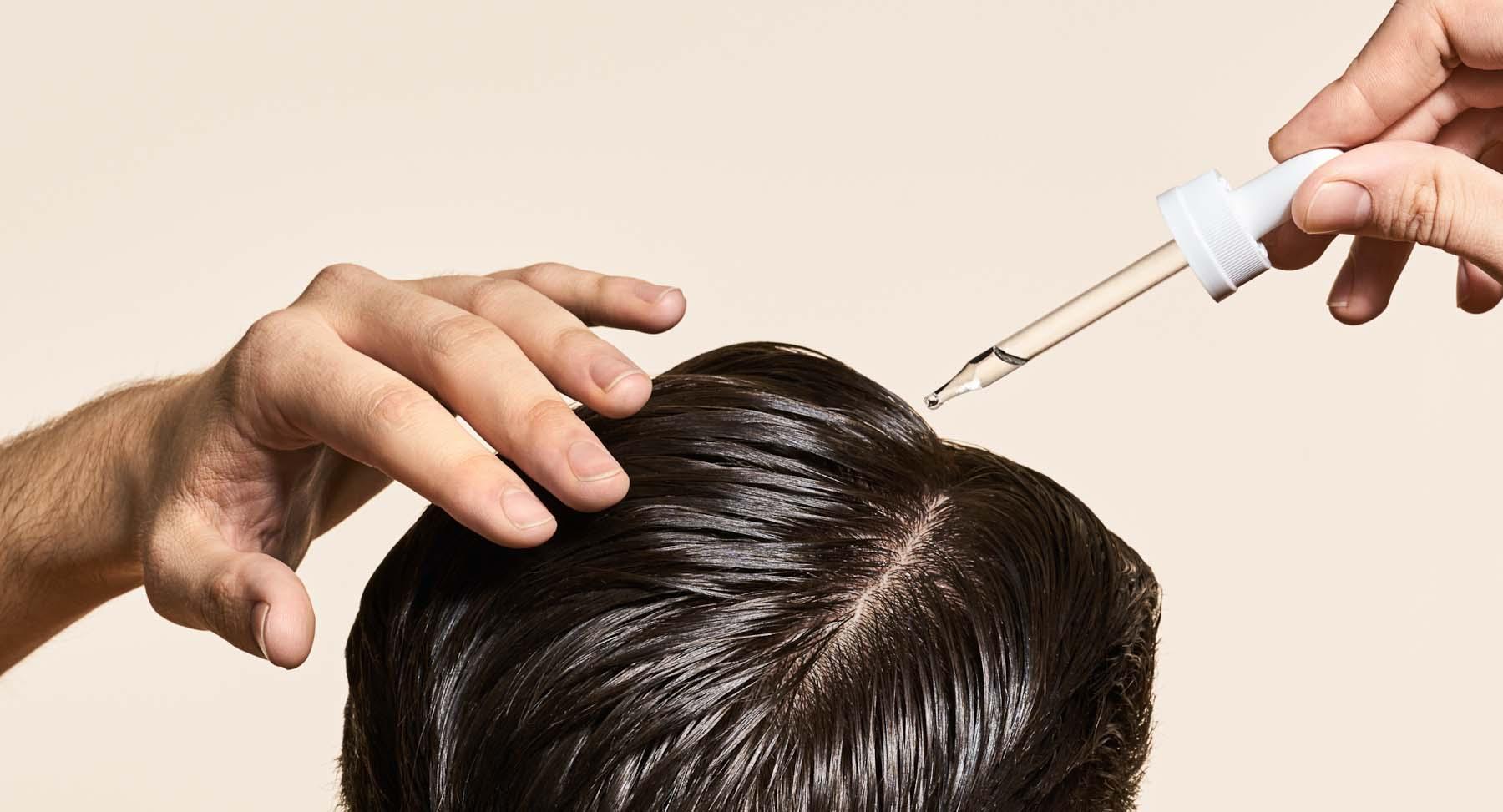 Non-surgical hair restoration treatment in Hyderabad, fue hair transplant near Habsiguda