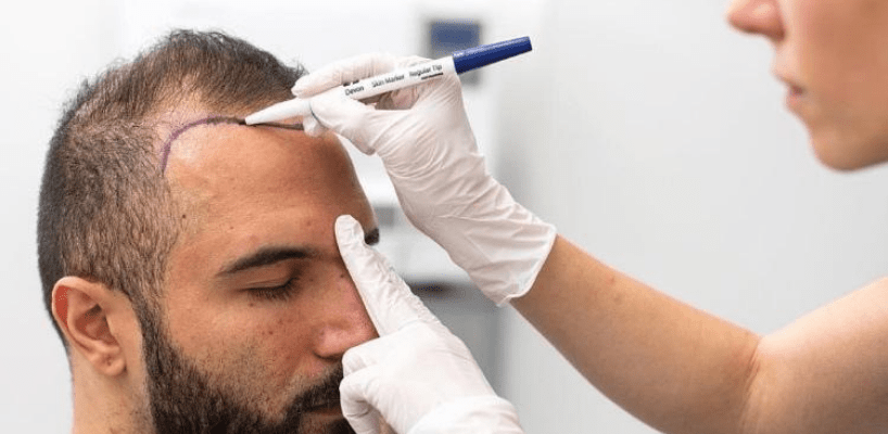 Consult for Hair transplantation at Hair Sure, hair transplant clinic in Hyderabad