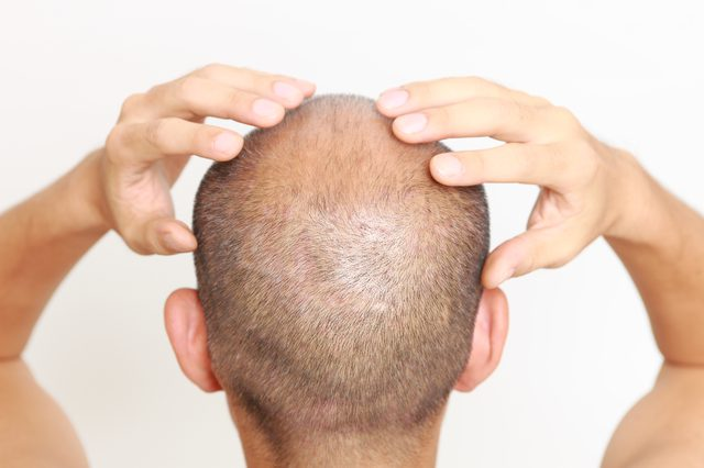 Best Clinic for Hair Transplantation in Hyderabad, best hair transplant doctors near me