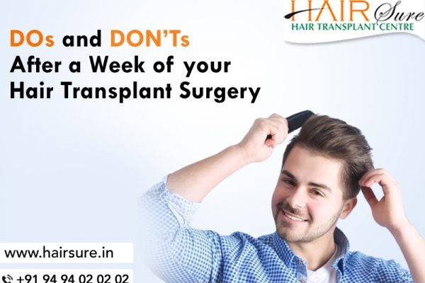 DOs and DON'Ts After a Week of your Hair Transplant Surgery