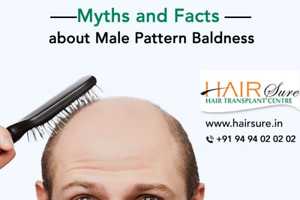 Myths and Facts about Male Pattern Baldness